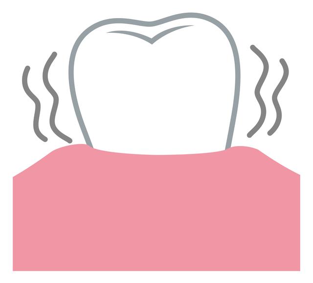 歯周炎中期